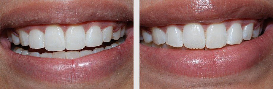 Cosmetic Dentistry 02