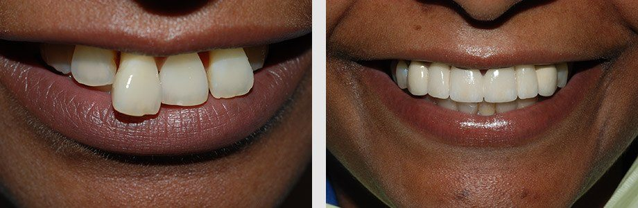 Cosmetic Dentistry 03