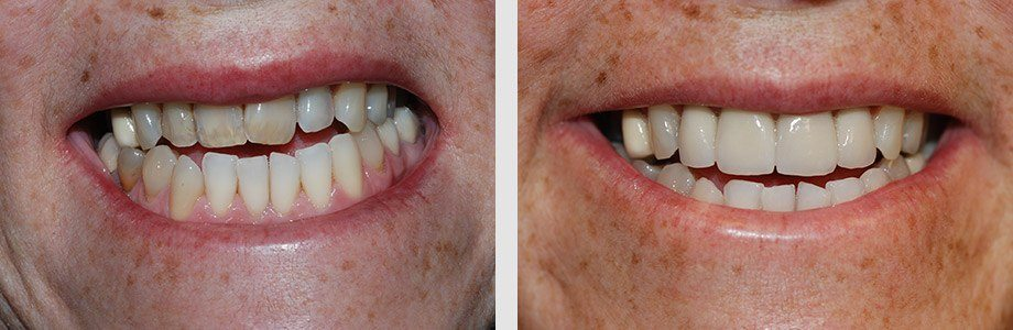 Cosmetic Dentistry 06