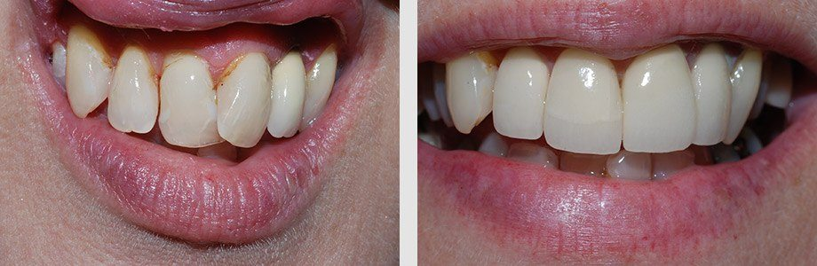 Cosmetic Dentistry 04