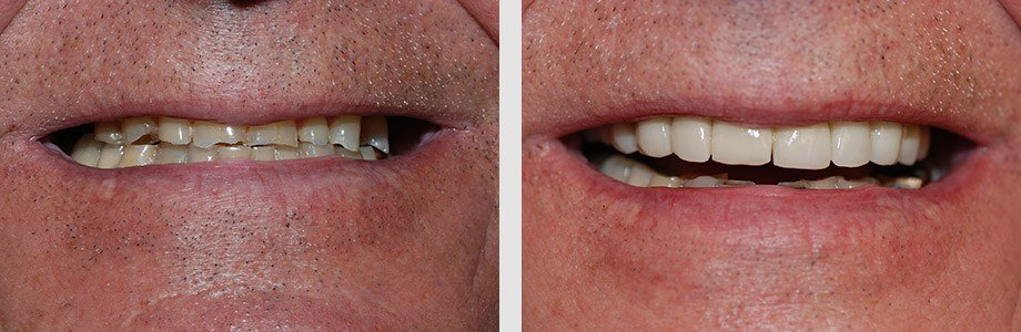 Cosmetic Dentistry 05