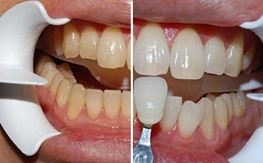 This patient wanted a whiter brighter smile for her wedding.