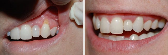 Gum Surgery Treatment