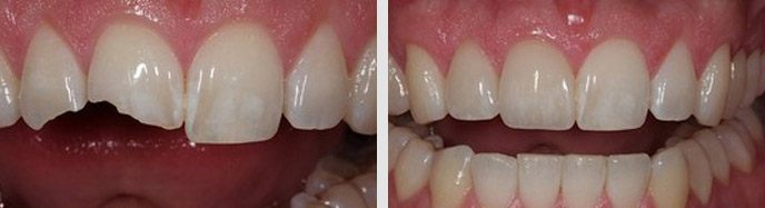 How are Porcelain Veneers prepared and placed