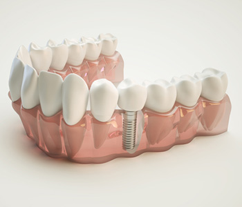What is the process of obtaining dental implants in Brampton area