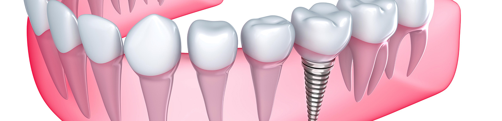 Full Mouth Teeth Implants in Brampton ON area